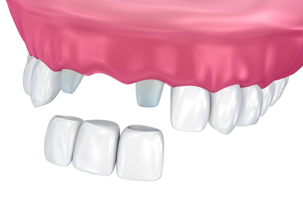Dental bridges treatment